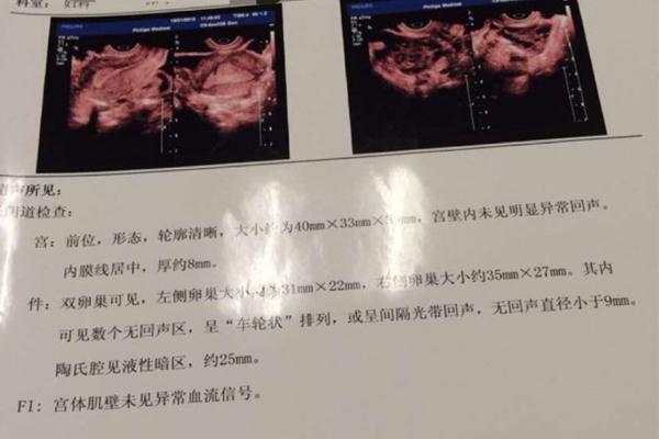 多囊+输卵管炎症,记录我的试管婴儿圆梦之路